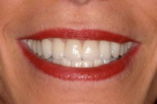 female veneer after